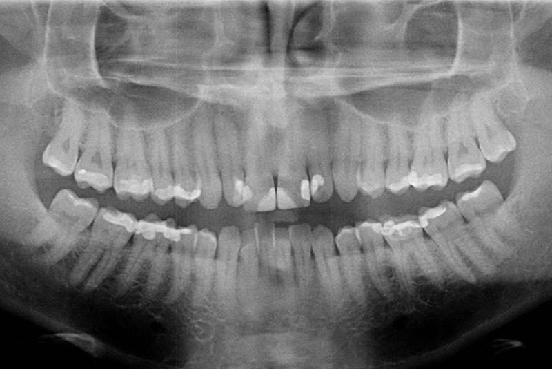 Une radiographie panoramique